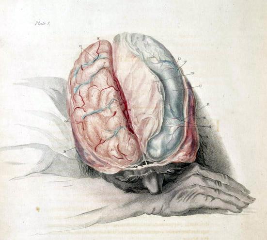 Bell_brain_cut