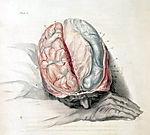 Bell brain cut
