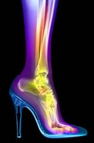 High-heels-x-ray