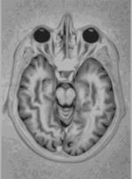 Brain_mrisvg