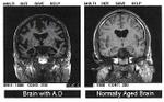 Alzheimers_disease__mri